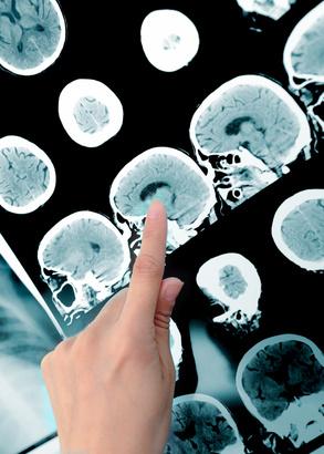 Seit einigen Jahren wird die Wirkung der Meditation z.B. mittels Magnetresonanztomographie.